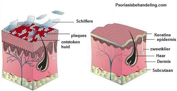 Psoriasis huid