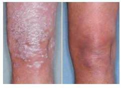voor en na psoriasis