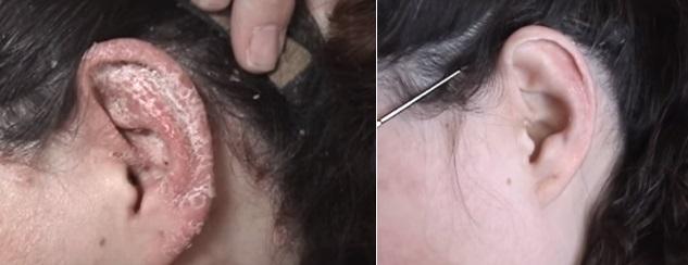 voor en na psoriasis2