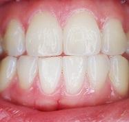 Gezonde tanden zonder fluoride